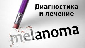 лечение меланомы в Израиле. Отзывы и цены