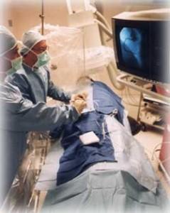 Ангиопластика и стентирование сосудов в Израиле.Отзывы и цены