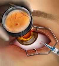 Операция на глаза улучшение зрения стоимость