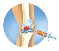 Ортокин терапия коленного сустава