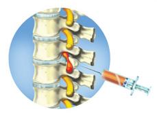 Ортокин терапия межпозвоночной грыжи