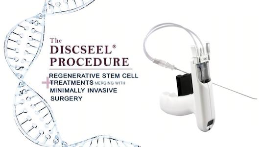 Дисксил-терапия восстановления межпозвоночного диска. DST Discseel процедура
