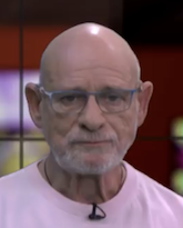 Профессор Арье Бас, сосудистый ангиохирург