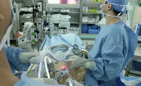 Уменьшение желудка без хирургии Endozip за рубежом