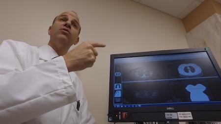 Лечение рака легких в Израиле. 1, 2, 3, 4 стадии рака легкого