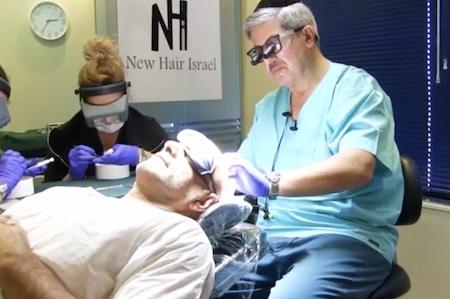 Трансплантация волос при облысении в Израиле. Отзывы и цены