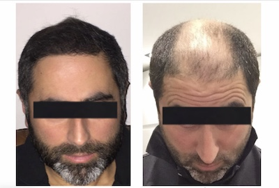 Пересадка волос при облысении в Израиле. Фото до и после