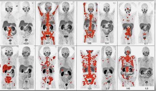 Онкологическая тераностика в Израиле. Тераностика от рака за рубежом